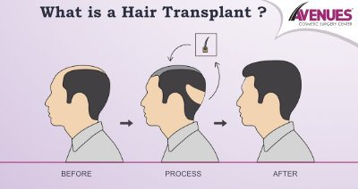 hair transplant cost in Ahmedabad